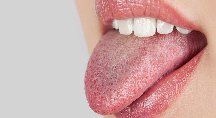 Why Does Weed Cause Cotton Mouth?