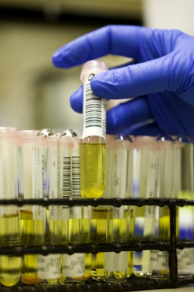 Can Synthetic Urine Really Beat Drug Tests?